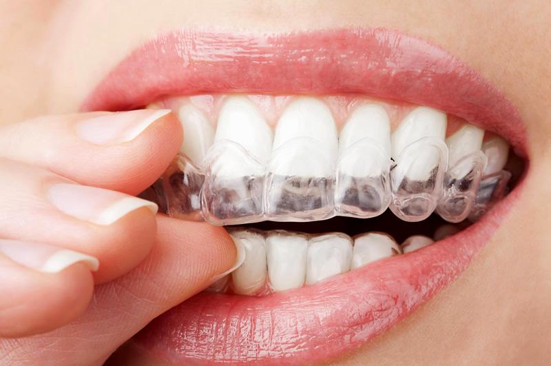 ortodoncia-invisalign