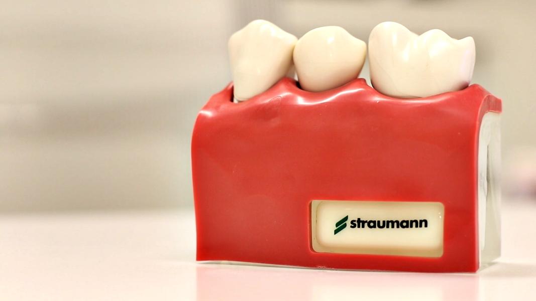 implantes dentales salamanca