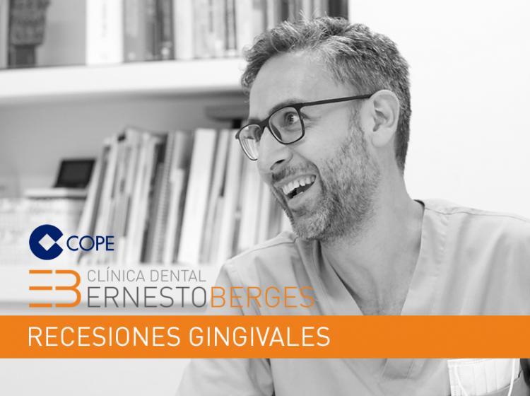 clinica-dental-berges-recesiones-gingivales-salamanca