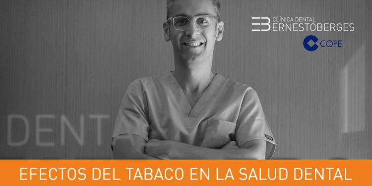 efectos-del-tabaco-en-la-salud-dental