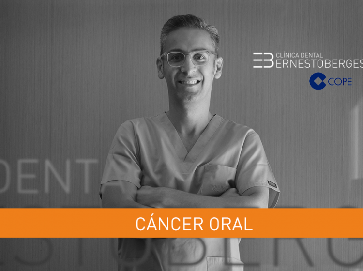 cancer-oral-causas