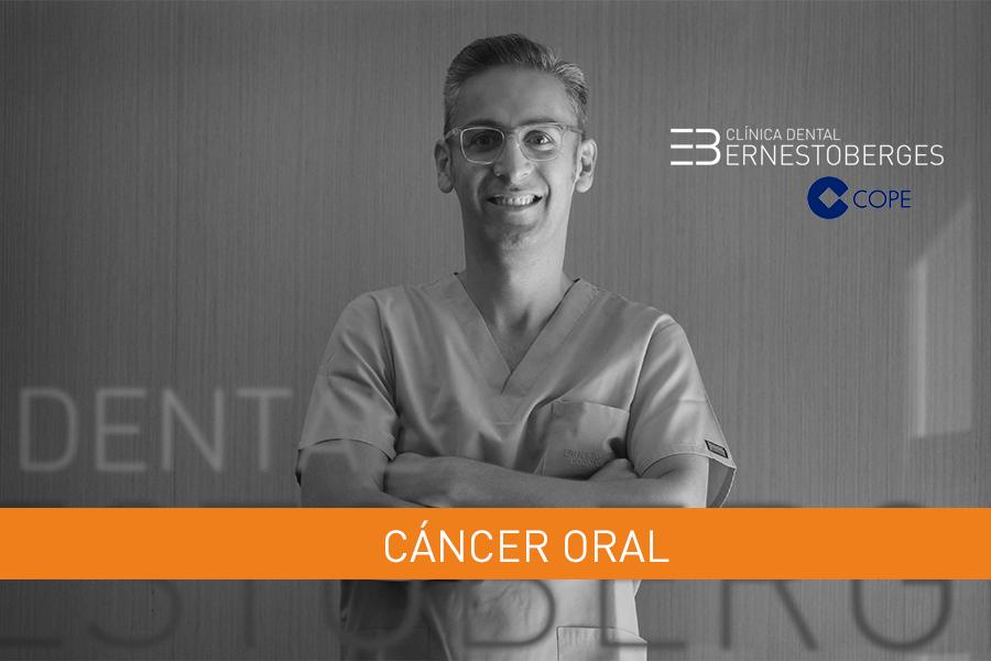 cancer-oral-causas
