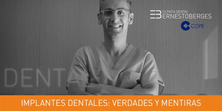 implantes-dentales-verdades-y-mentiras