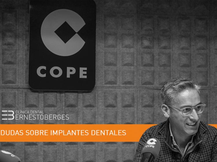 implantes-dentales-dudas